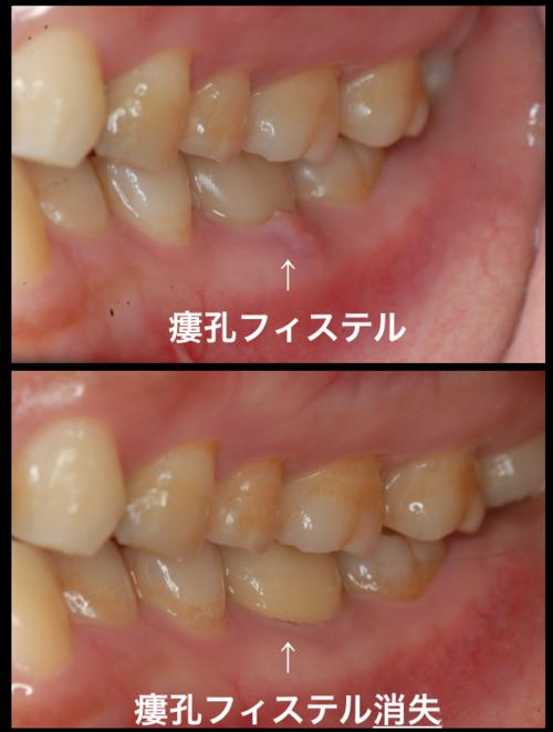 最後の砦 髄床底パーフォレーション穿孔根分岐炎症症例  東京職人歯医者_e0004468_15514465.png