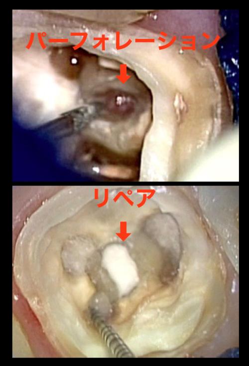 最後の砦 髄床底パーフォレーション穿孔根分岐炎症症例  東京職人歯医者_e0004468_536597.png