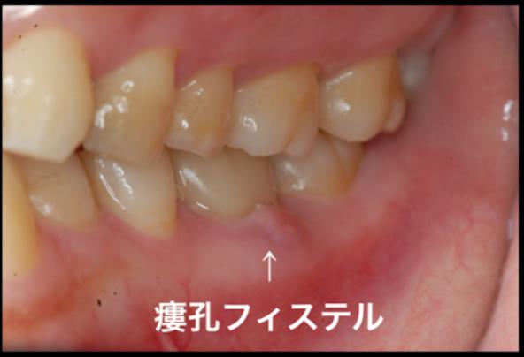 最後の砦 髄床底パーフォレーション穿孔根分岐炎症症例  東京職人歯医者_e0004468_7283931.png