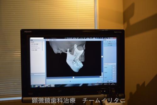 咬合、咬み合わせの観察 東京職人歯医者 KAVOプロターevo7 Arcus Digma_e0004468_6462811.jpg