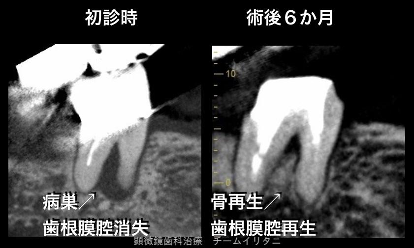 全歯科医師が抜歯宣告の歯を抜かずに治すということ。東京職人歯医者_e0004468_5213711.png