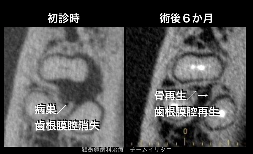 全歯科医師が抜歯宣告の歯を抜かずに治すということ。東京職人歯医者_e0004468_5214375.png