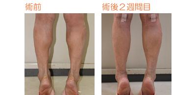フクラハギを細くする手術(LDDN法) 術後2週間目_c0193771_854133.jpg