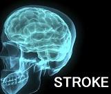 COPDと脳卒中リスク_e0156318_13211658.jpg