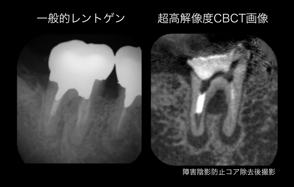 抜かないインプラントにしないために。CBCTと顕微鏡の有用性_e0004468_7382631.png