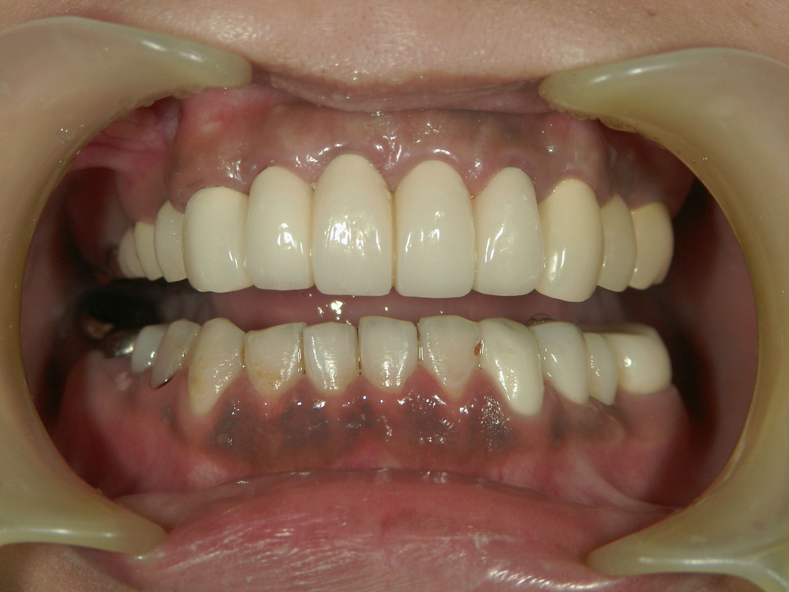 ■金属歯フェチ■銀歯・金歯・差し歯に萌えYouTube動画>53本 ->画像>399枚
