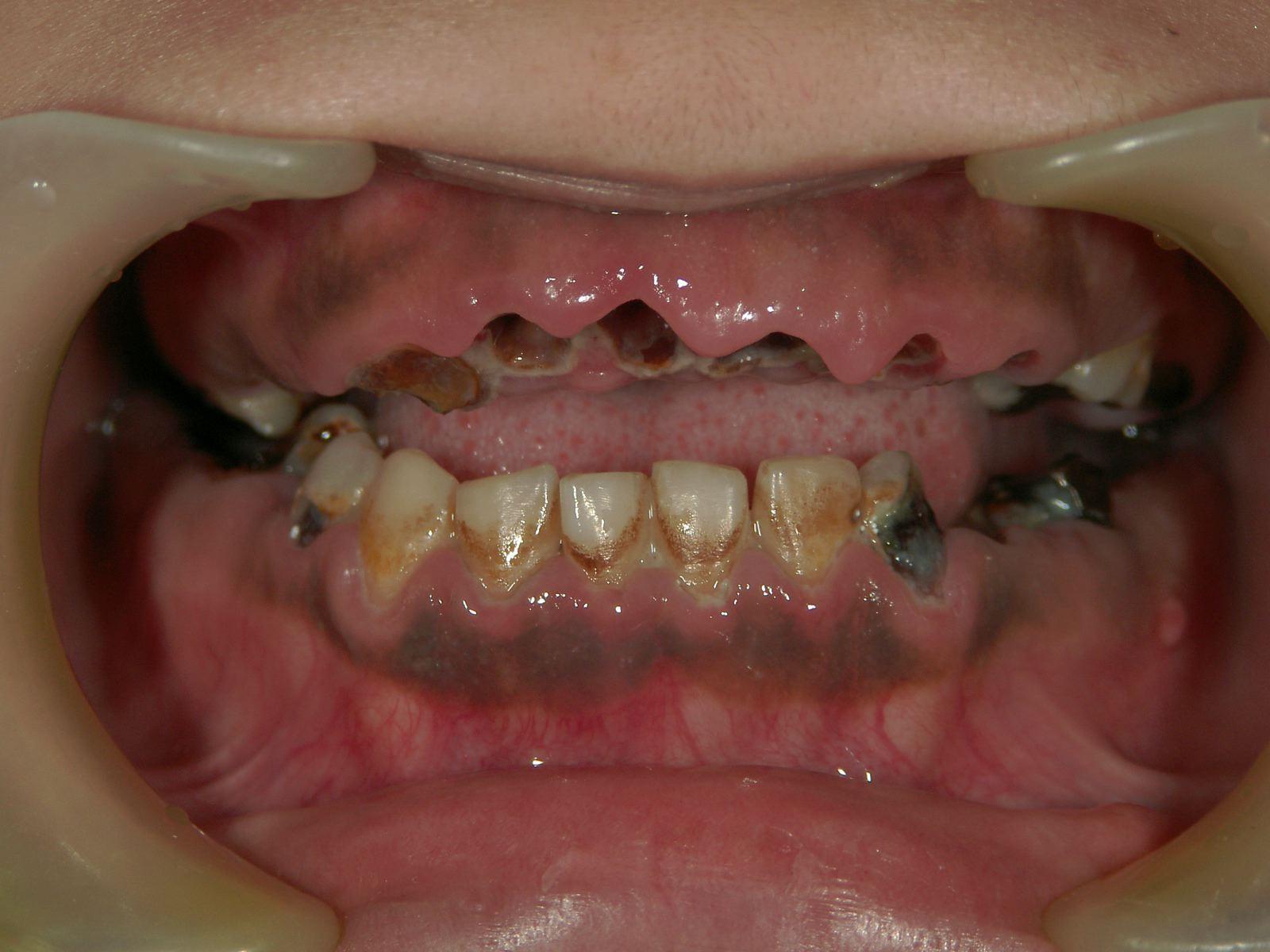 自力 治す 虫歯 で