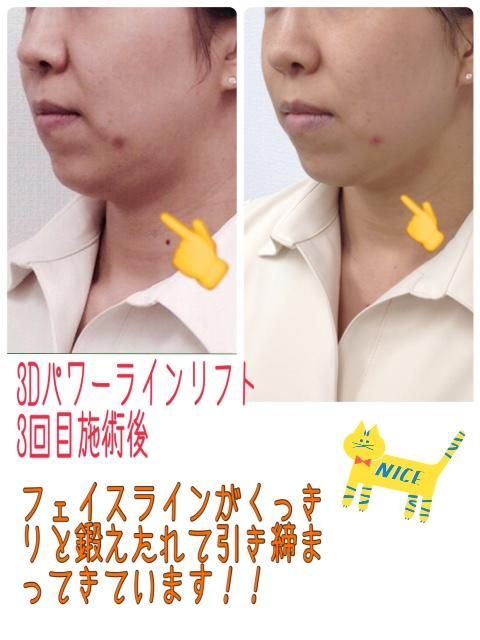 f0248512_15161861.jpg