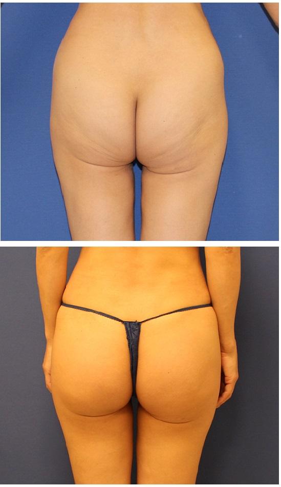 他院臀部脂肪吸引後  脂肪移植_d0092965_393596.jpg