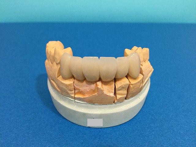 審美歯科 セラミック歯_b0184294_141935100.jpg
