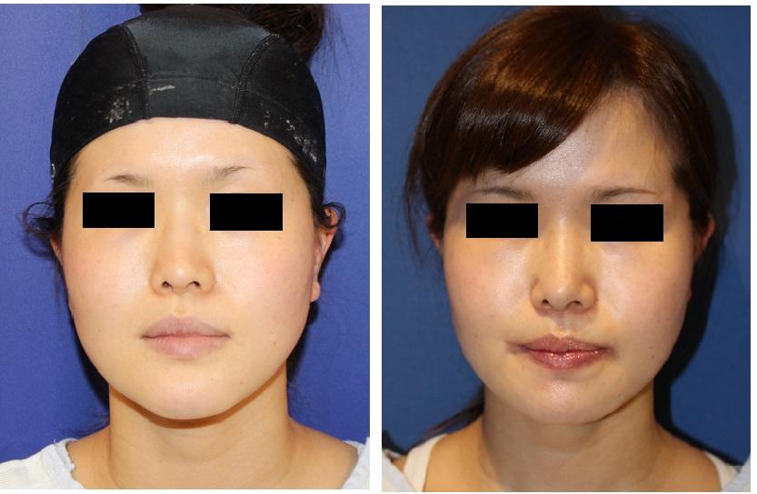 鼻先婦人科軟部組織移植、口角拳上(外側法)、顎先骨切術_d0092965_3132537.jpg