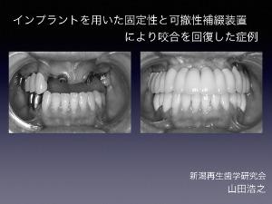 日本口腔インプラント学会で発表してきました_c0164416_18585391.jpg