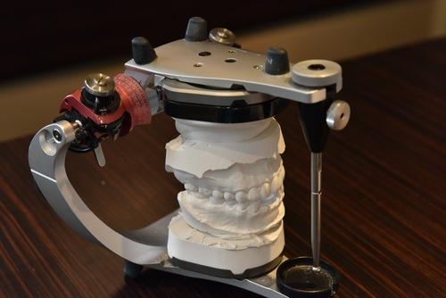抜かないインプラントにしないために。CBCTと顕微鏡の有用性_e0004468_10334619.jpg
