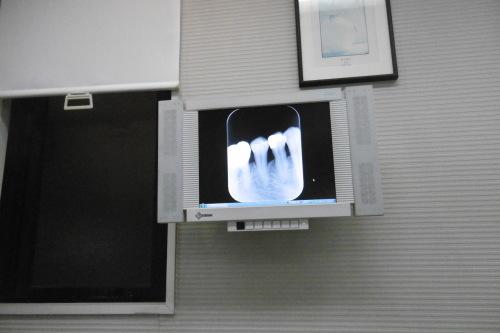 歯医者さん_f0205367_20320605.jpg