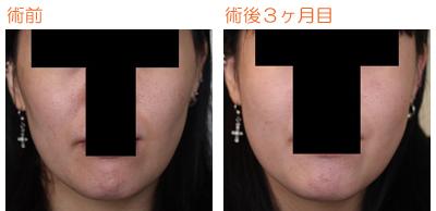 頬骨削り(再構築法) 術後3ヶ月目_c0193771_8201945.jpg