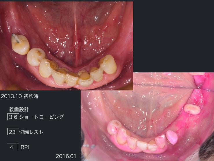 2016/04/19 院外勉強会に参加してきました_b0112648_16164726.jpg