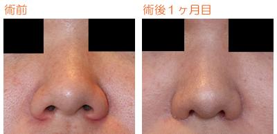 小鼻縮小 術後1ヶ月目_c0193771_8212598.jpg