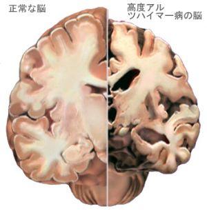 脳の萎縮 : 老化を考える会