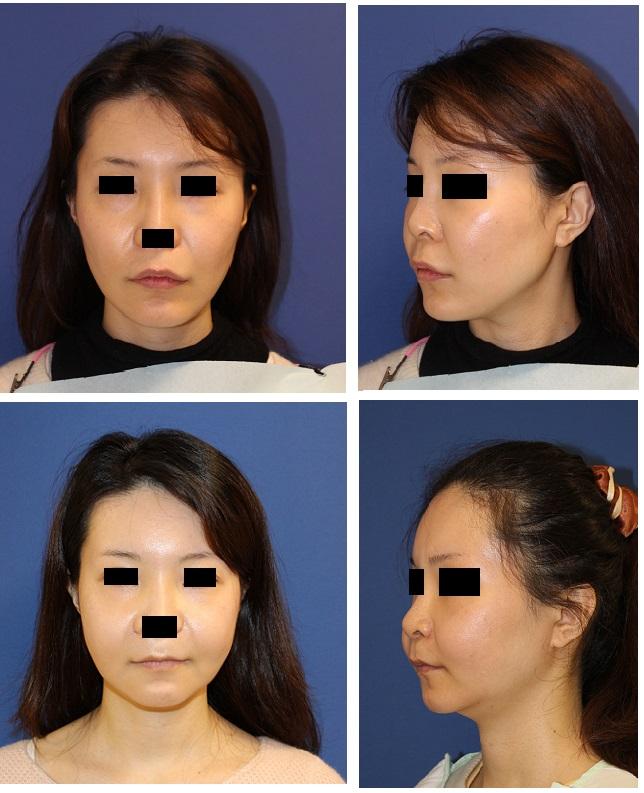 他院エラ、頬、顎骨削り 術後 中顔面短縮術(ベビーフェイス形成) ルフォーⅠ型骨切術_d0092965_24856100.jpg