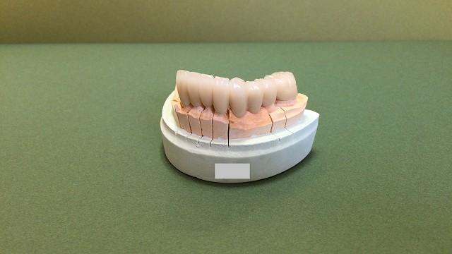セラミック歯 ブリッジ8本_b0184294_1046459.jpg