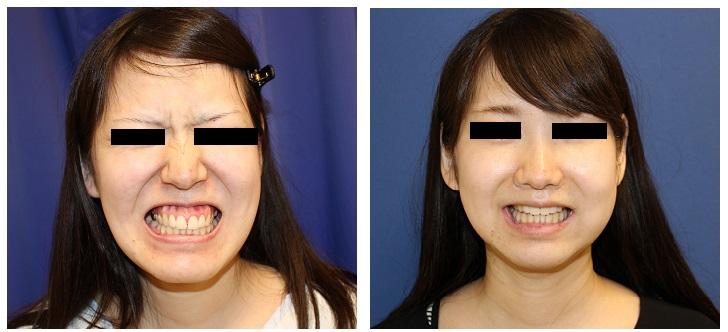 中顔面短縮術(LeFortⅠ型骨切術 + SSRO )  術後3週間_d0092965_2421114.jpg