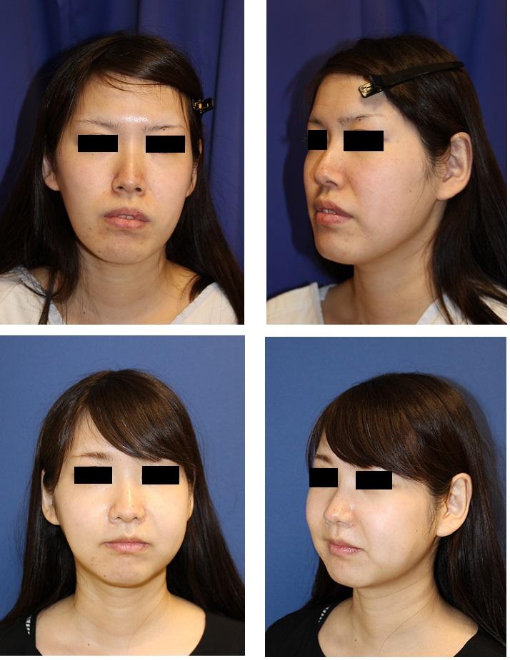 中顔面短縮術(LeFortⅠ型骨切術 + SSRO )  術後3週間_d0092965_242667.jpg