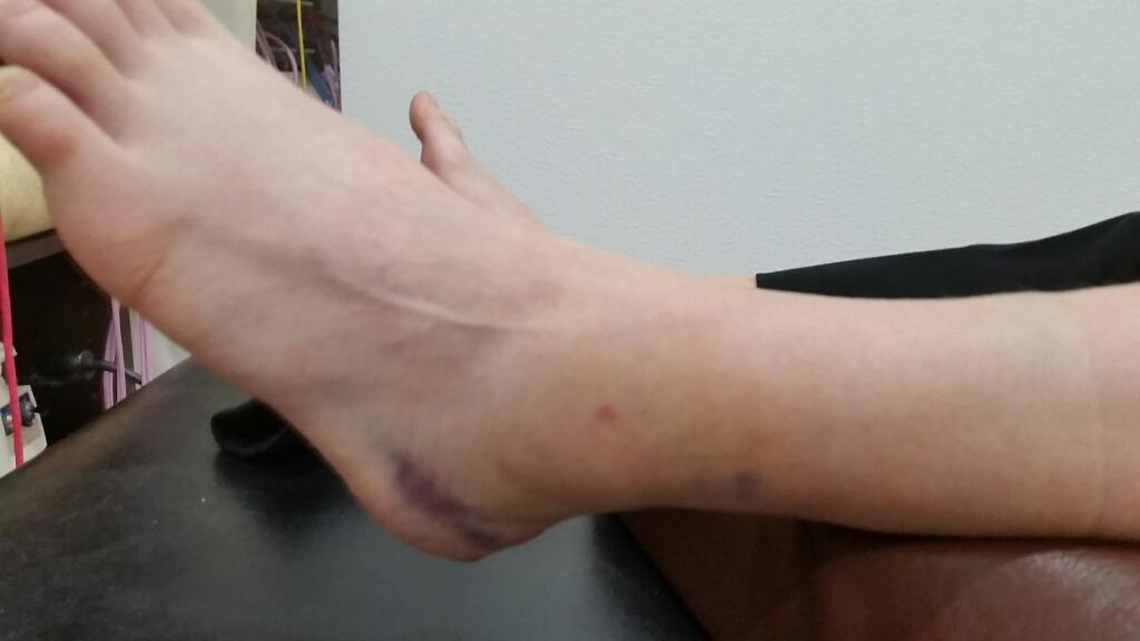 足の骨折。1ヶ月間の治療経過。_e0326688_16130264.jpg