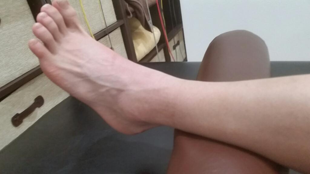 足の骨折。1ヶ月間の治療経過。_e0326688_16130463.jpg