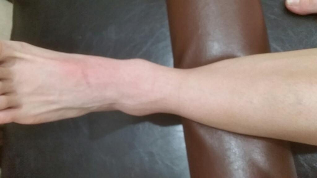 足の骨折。1ヶ月間の治療経過。_e0326688_16130629.jpg