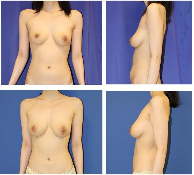 脂肪移植豊胸術 一年間に3回  最終施術より約7か月後再診_d0092965_3152911.jpg