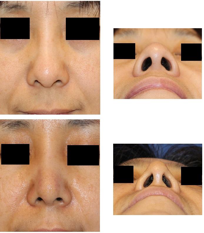 レーザー鼻尖縮小術 術後約1週間_d0092965_3441063.jpg