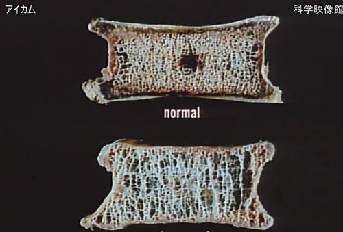 本日の配信映画は「生きている骨-骨粗鬆症の背景を探る- 」_b0115553_16422467.png
