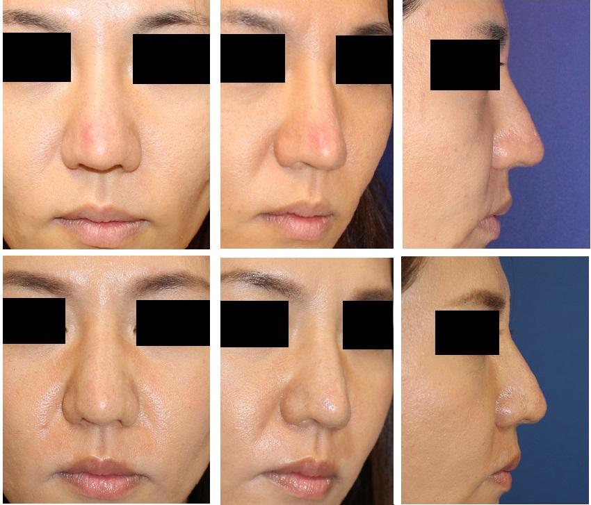 他院鼻尖部軟骨移植後修正術:  移植軟骨除去 + 婦人科組織鼻尖部移植術 _d0092965_0332122.jpg