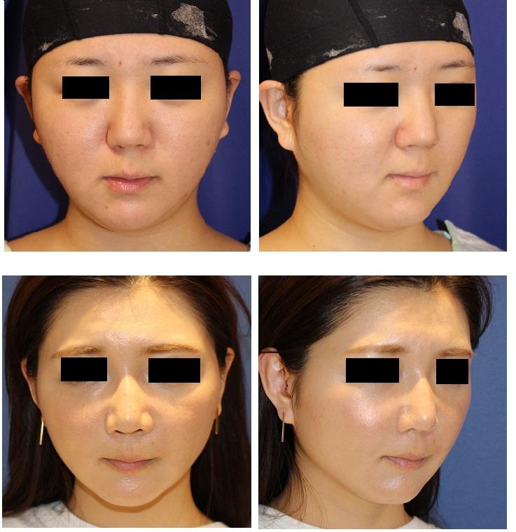 鼻中隔延長術、鼻尖縮小術、眉間プロテーゼ、鼻翼基部アパタイト、BNLS注射_d0092965_1202979.jpg