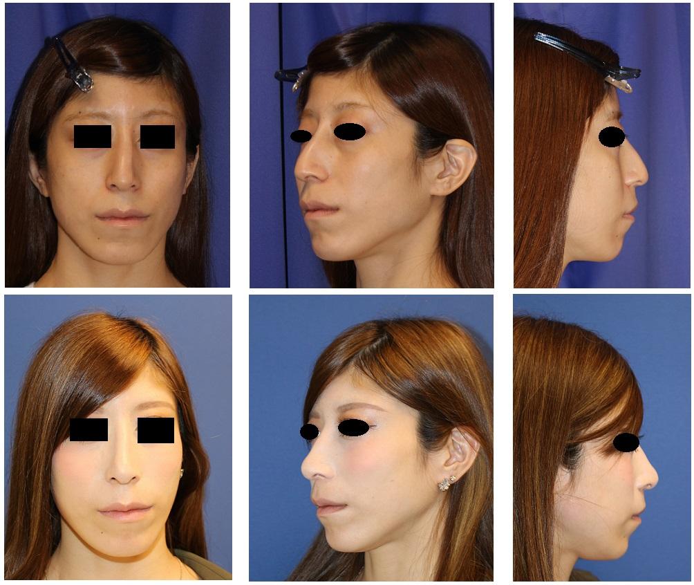 他院鼻骨削り、鼻プロテーゼ留置術、ハンプ削り、斜鼻修正術、小鼻縮小術、鼻尖縮小術  術後修正術_d0092965_371540.jpg