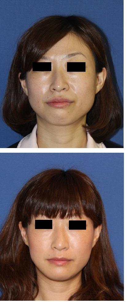 インビザラインによる歯並び矯正, アキュスカルプレーザーによる小顔化リフト_d0092965_150626.jpg