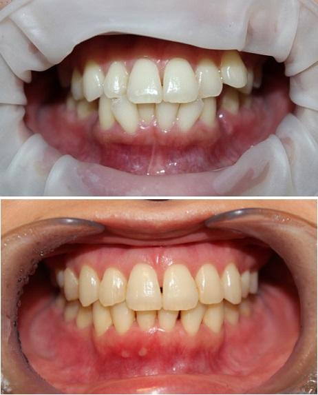 インビザラインによる歯並び矯正, アキュスカルプレーザーによる小顔化リフト_d0092965_1511835.jpg