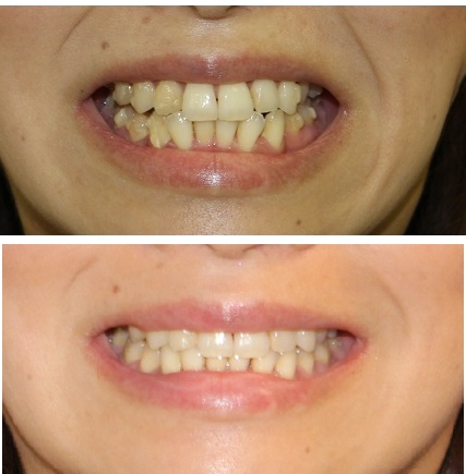インビザラインによる歯並び矯正, アキュスカルプレーザーによる小顔化リフト_d0092965_1524511.jpg
