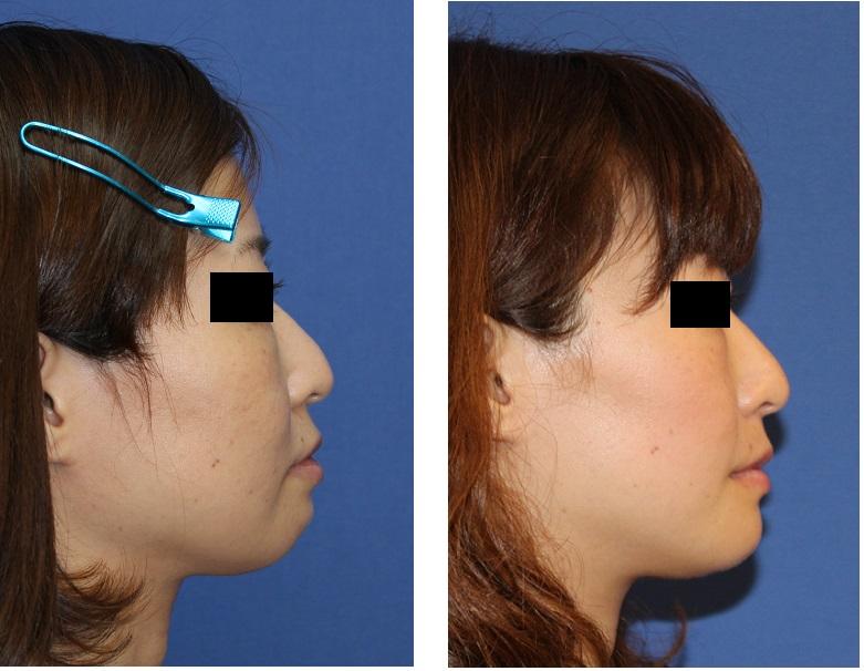 インビザラインによる歯並び矯正, アキュスカルプレーザーによる小顔化リフト_d0092965_152612.jpg