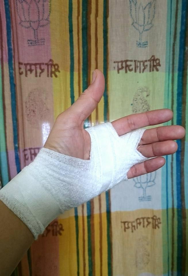 手を負傷_e0075673_108970.jpg