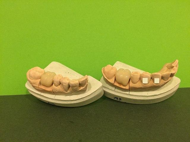セラミック歯・第一大臼歯 _b0184294_1441928.jpg