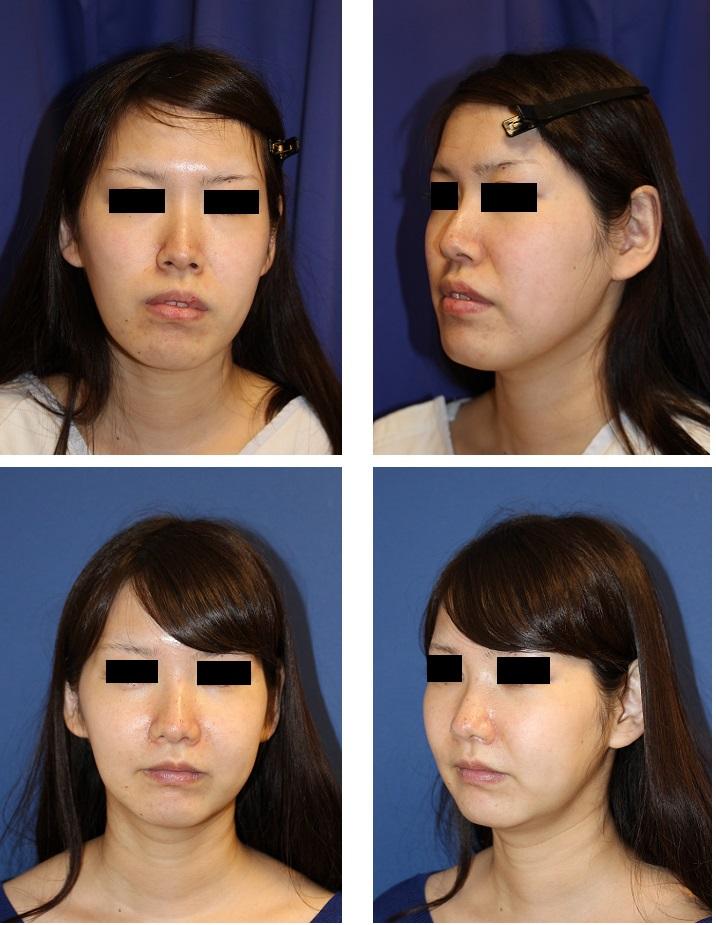 中顔面短縮術(ルフォーⅠ型骨切術+下顎矢状分割術) , BNLS注射_d0092965_2431551.jpg