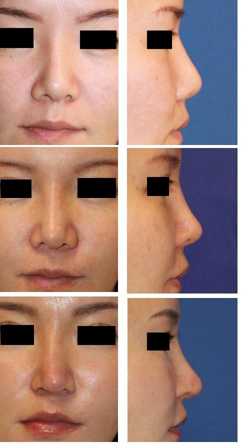 鼻中隔延長術 術後5年 、 再度鼻中隔延長術(肋軟骨使用)、小鼻肉厚減幅術、鼻孔縁拳上術_d0092965_4224871.jpg
