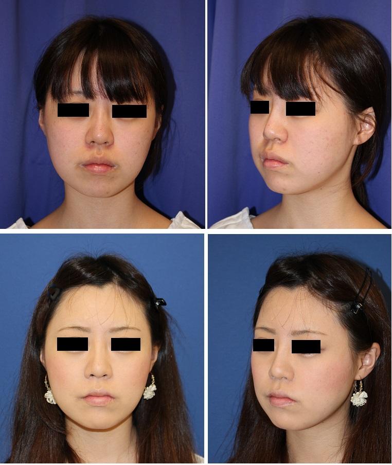 上口唇縮小術 ,  鼻翼基部アパタイト形成術_d0092965_365051.jpg