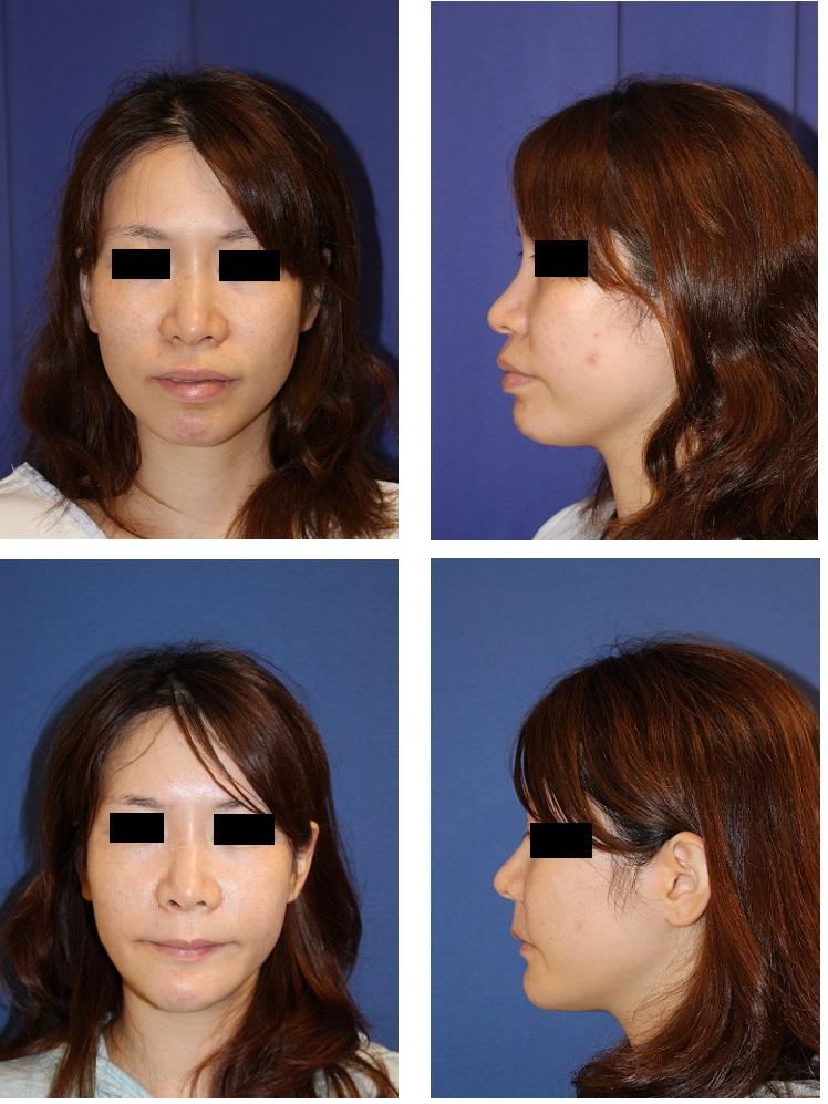上下歯槽骨骨切後方移動術(セットバック),他院顎プロテーゼ抜去、顎先骨切前方移動術_d0092965_4422695.jpg