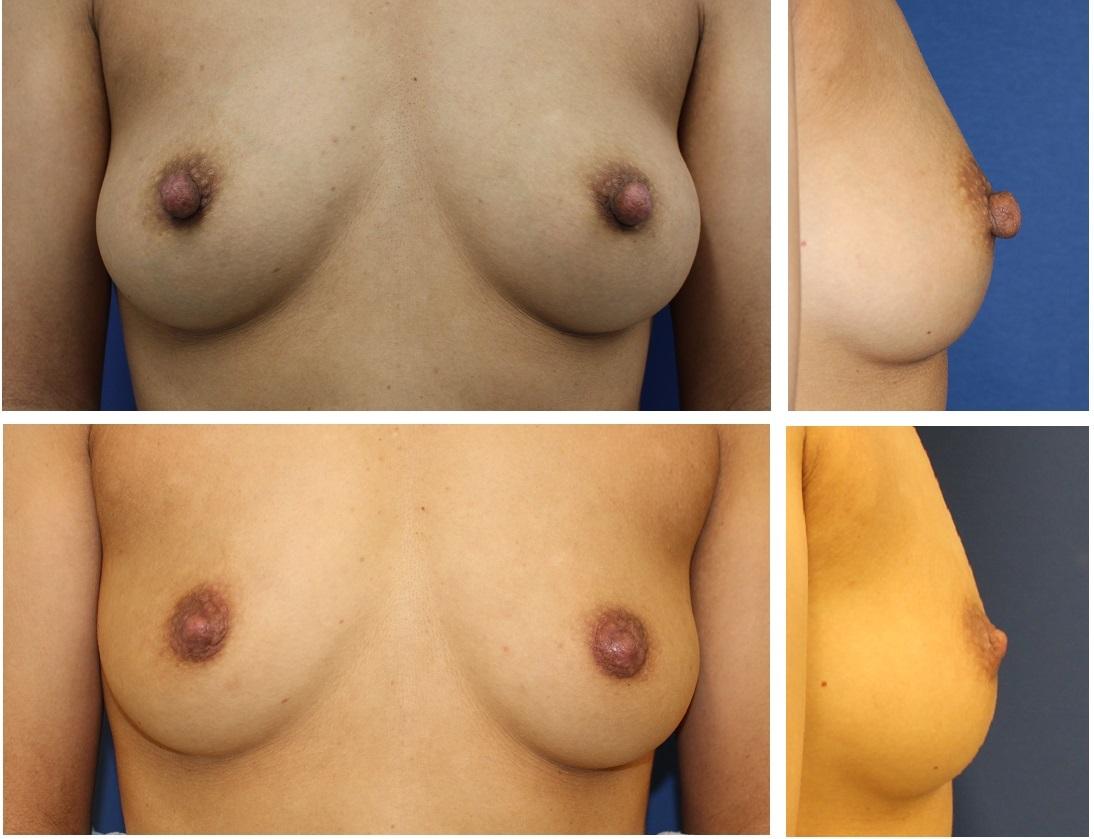 乳頭縮小術(ITO法) 術後約半年_d0092965_03070666.jpg
