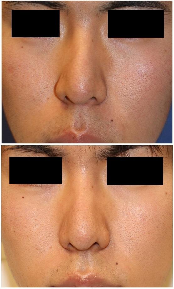 骨切 斜鼻修正術  , 人中短縮術 (クローズ法)  術後約1年9か月_d0092965_03484765.jpg