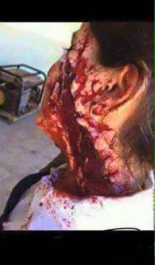検証:消えた女の子『シリアのほこりと血にまみれ男児』/ 報道 _b0003330_919576.jpg