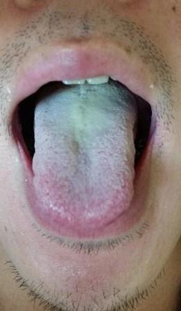 舌の変化(松浦)_f0354314_22592902.jpg