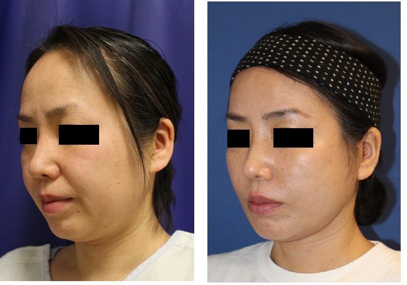 SMASリフト、FAMI法、スプリングスレッドリフト、ベイザー頬顎脂肪吸引、法令線剥離術_d0092965_03255612.jpg